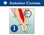 Anterior Crown