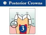 Posterior Crown