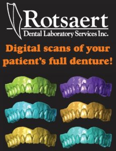 Digital Dentures Starts Here! | Rotsaert Dental Laboratory